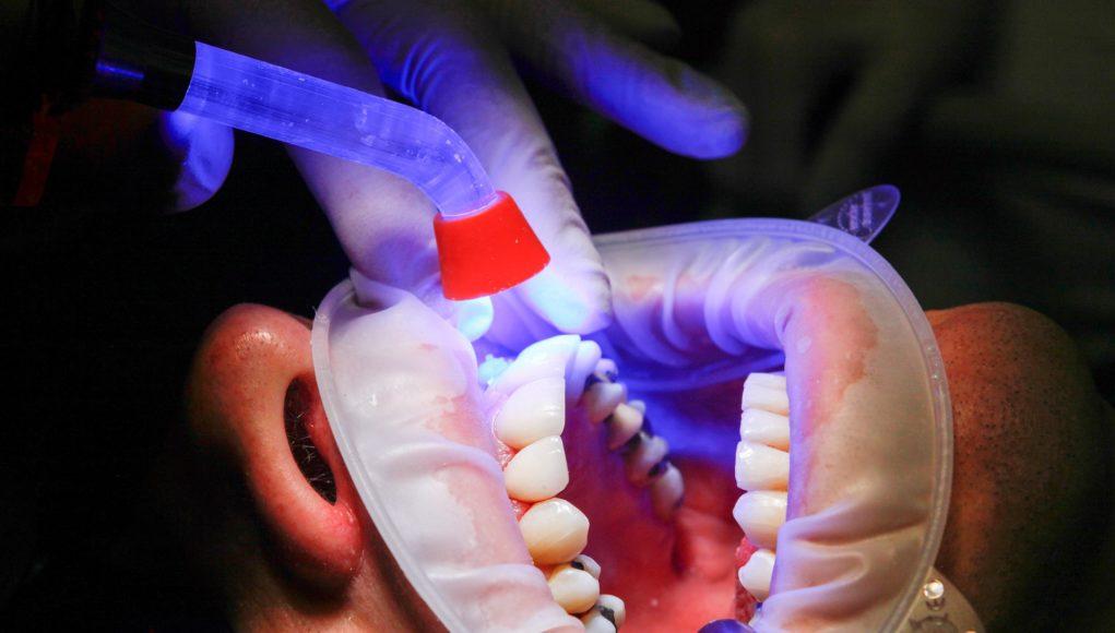 chistul dentar